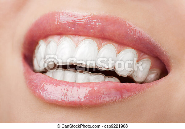 teeth with whitening tray - csp9221908
