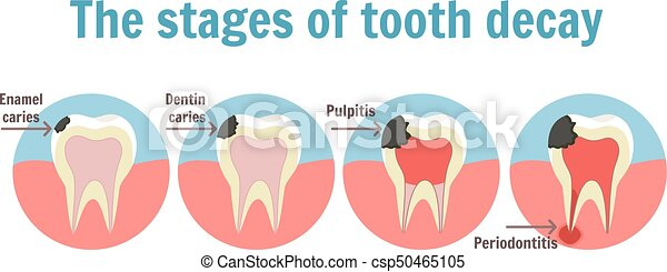 The stages of tooth decay infographic dental toothache symbol the stages of tooth decay infographic dental toothache symbol csp50465105 ccuart Gallery