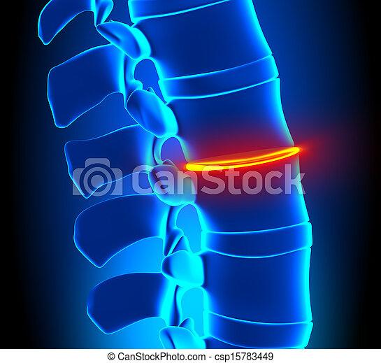 Thinning Disc Degeneration - Spine - csp15783449