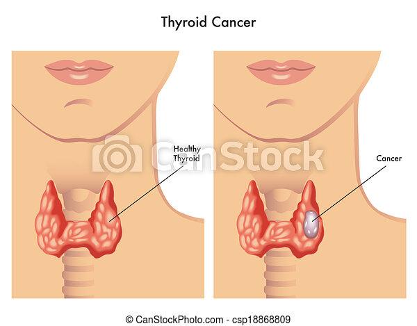 thyroïde, cancer - csp18868809
