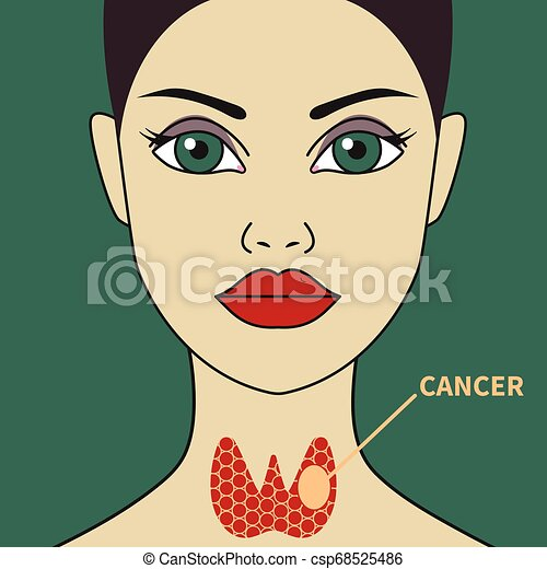 Thyroid cancer in woman - csp68525486