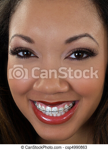 Tight portrait of smiling black woman with braces - csp4990863