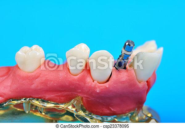 titanium implant - csp23378095