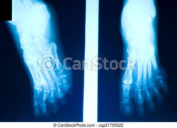 Toe , film, knochenbrüche, röntgenaufnahme.