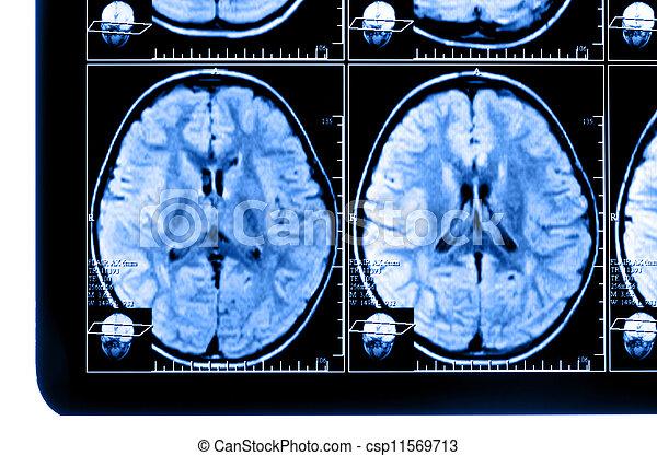 Tomographie, gehirn, bild, berechnet, röntgenaufnahme.