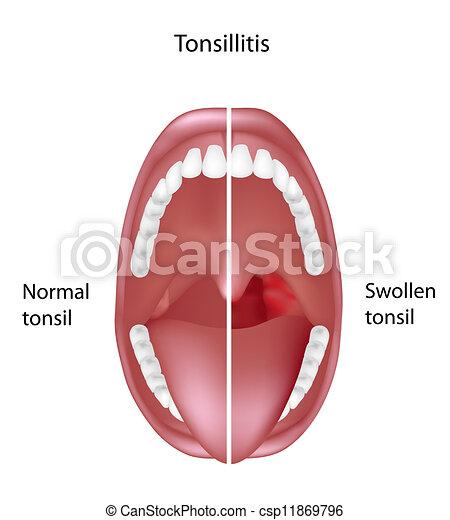 Normal Tonsil Diagram - Block And Schematic Diagrams •