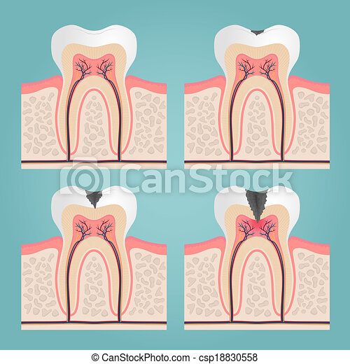 Tooth anatomy and damage, cut teeth in the gums vector illustration.