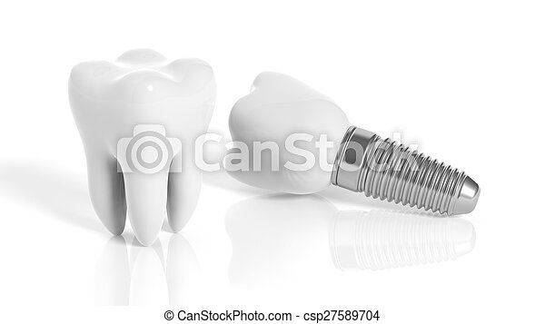 Tooth and dental implant isolated on white background - csp27589704
