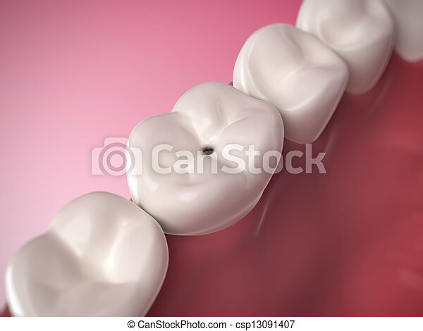 Tooth decay - csp13091407