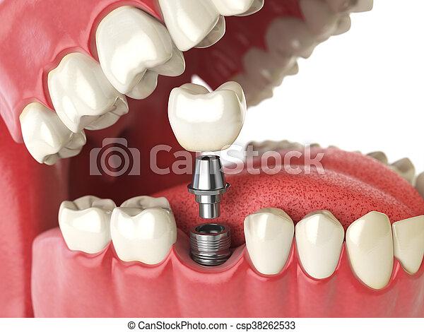Tooth human implant. Dental concept. Human teeth or dentures. - csp38262533