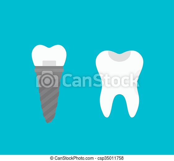 Tooth implant  - csp35011758