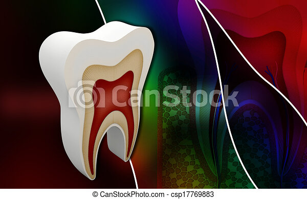 tooth structure - csp17769883
