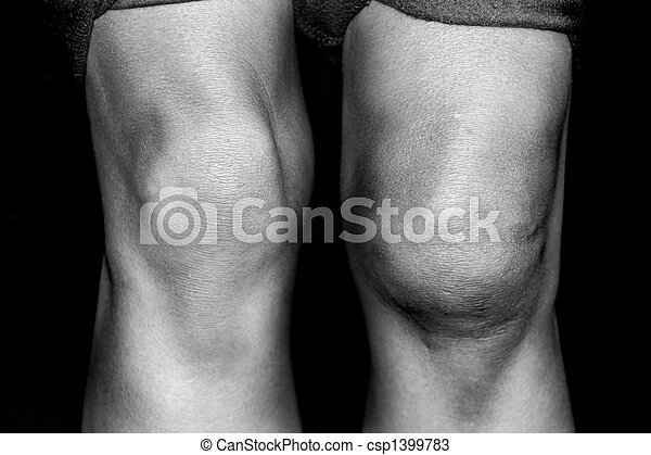Torn Medial Patellar resulting from a knee dislocation - csp1399783