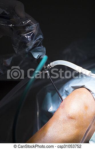 Traumatology orthopedic surgery hospital emergency operating room prepared for knee torn meniscus arthroscopy operation photo of drip fluids tube.