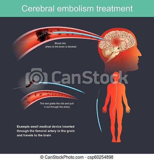 treatment., cérébral, embolie - csp60254898
