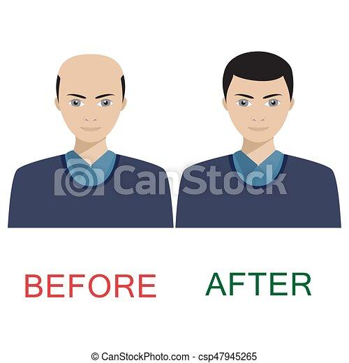 treatment., cheveux, avant, après, homme - csp47945265