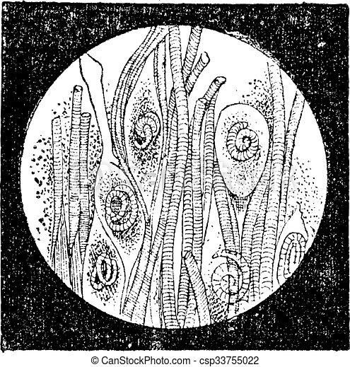 trichina, 型, みみず, trichinella, ∥あるいは∥, engraving. - csp33755022