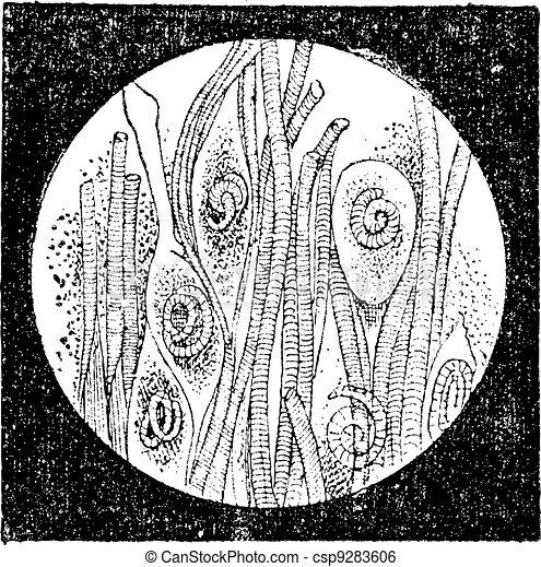 trichina, 型, みみず, trichinella, ∥あるいは∥, engraving. - csp9283606