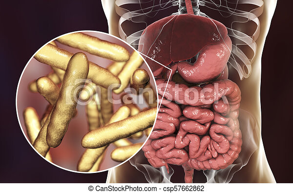 Whipple bacteria ie,