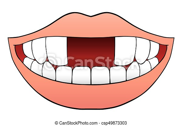 https://comps.canstockphoto.com/two-front-teeth-missing-vector-clipart_csp49873303.jpg