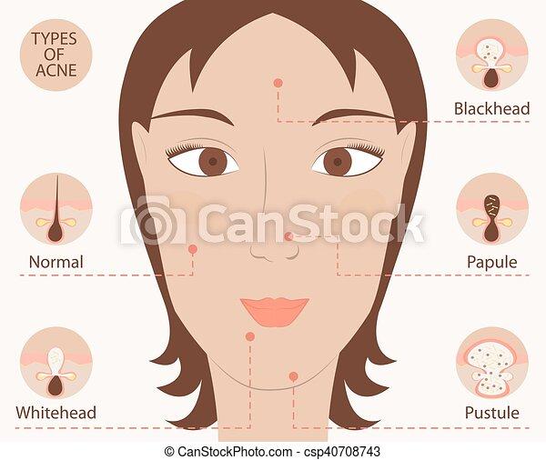 types Facial growth