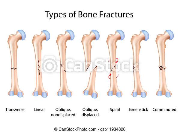 Types of bone fractures, eps8 - csp11934826