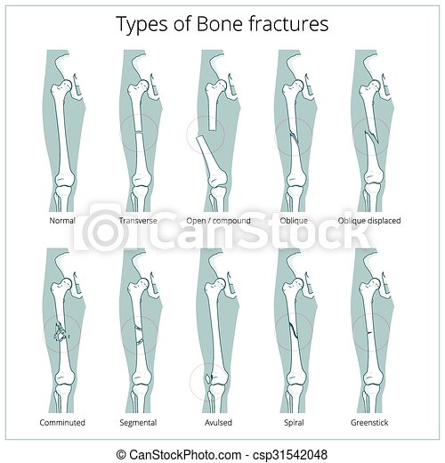 Types of bone fractures medical educational vector. Types of bone ...