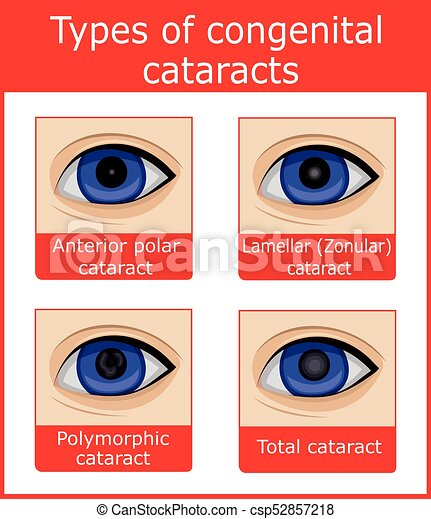 Types Of Congenital Cataracts Four Types Of Congenital Cataracts