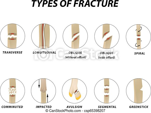 Types of fracture  Fracture bone set  Infographics  Vector illustration on  a lined background