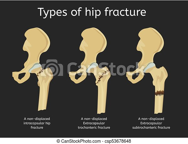 Types of hip fracture