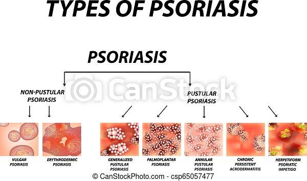 Types of psoriasis  Pustular and not pustular  Vulgar, erythroderma,  erythrodermic psoriasis, persistent acrodermatitis, psoriatic impetigo   Eczema,