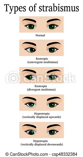 Strabismus (Crossed Eyes) picture