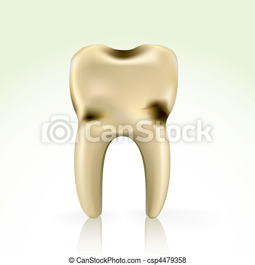 unhealthy, yellow cavity tooth - csp4479358