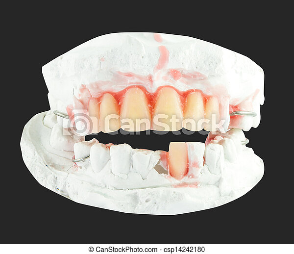 upper and lower plaster denture  - csp14242180