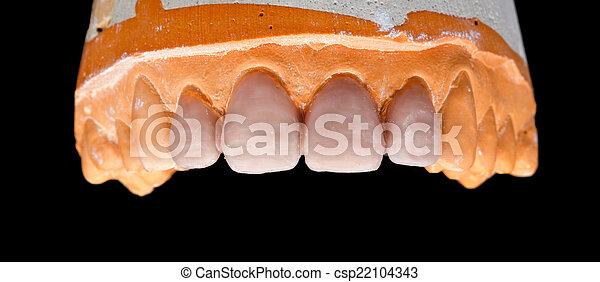 Upper denture gypsum model - csp22104343