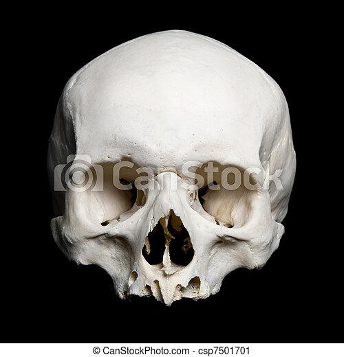 Upper Half Of The Real Human Skull Real Human Skull Upper Stock