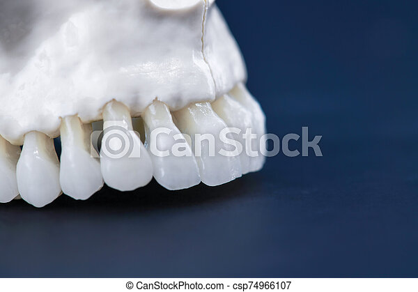 Upper human jaw with teeth - csp74966107