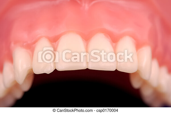 Upper Teeth - csp0170004