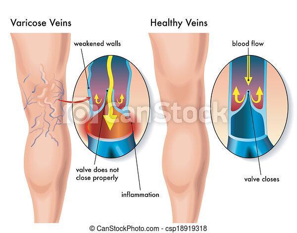 varicose veins - csp18919318