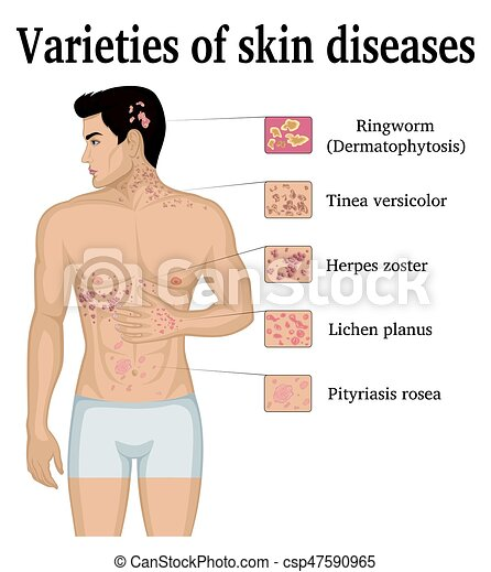 Varieties of skin diseases - csp47590965