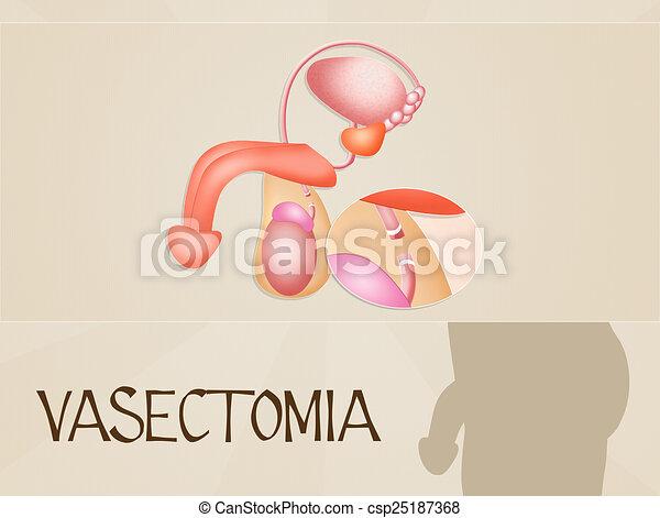 Vasectomy - csp25187368