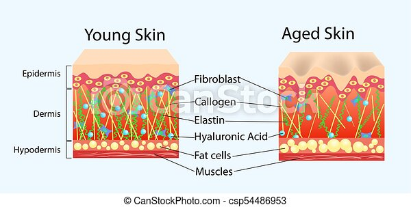 Vector diagram with schemes of two types of skin, for healthcare illustrations - csp54486953