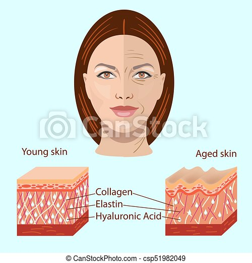 Vector face and two types of skin - aged and young for medical and cosmetological illustrations - csp51982049