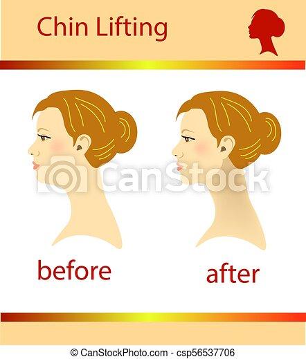 Ilustración de una mujer con doble barbilla y barbilla normal, ilustración vectorial - csp56537706