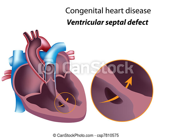 Ventricular septal defect eps8 congenital heart disease congenital heart disease ventricular septal defect ccuart Gallery