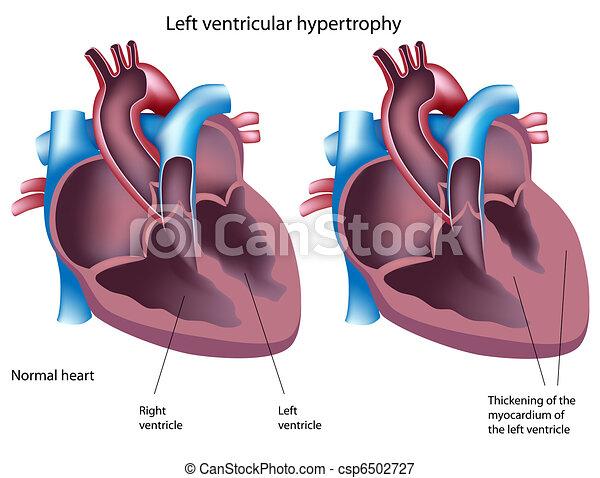 ventrikulär, hypertrophie, eps8, links - csp6502727