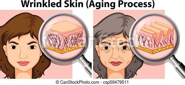 vieille dame, jeune, peau - csp59479511