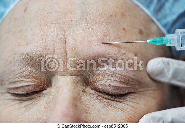 Mujer anciana recibiendo inyección de botox en la frente - csp8512005