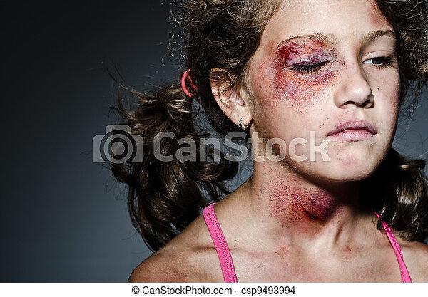 Violencia doméstica - csp9493994