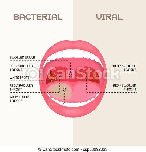 Virale Infektion